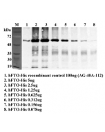 Immunoprecipitation of recombinant human FTO using anti-FTO (human), mAb (FT86-4) (Prod. No. AG-20A-0064). Recombinant human FTO proteins at different concentrations were precipitated by FT86-4. The precipitated proteins were separated by SDS-PAGE, electr
