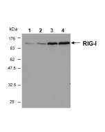 Western blot analysis of human RIG-I in HeLa cells by using RIG-I, mAb (Alme-1) (Prod. No. AG-20B-0009). Method: Cell extracts from HeLa cells either unstimulated (lane 1) or stimulated for 6h (lane 2), 16h (lane 3) or 24 h (lane 4) with Inte