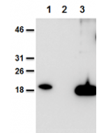 Mouse and human IL-38 is detected using anti-IL-38, mAb (Nhat-1) (AG-20B-0070).Method: Recombinant mouse IL-38 (AG-40B-0101) (lane 1), cell extracts from HEK 293 cells mock-transfected (lane 2) or transfected with human IL-38 (lane 3) were se