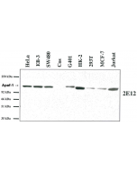 Western blot analysis using anti-Apaf-1 (human), MAb (2E12) (AG-20T-0132) on several human cell lines and one monkey cell line (COS).