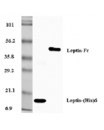 Western blot analysis of recombinant leptin (His-tagged) and leptin Fc-protein using anti-Leptin (human), pAb (Biotin) (Prod. No. AG-25A-0007B) at 0.2μg/ml concentration.
