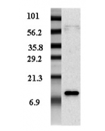 Western blot analysis of adipocyte-conditioned medium from human male and female with different expression levels using anti-Resistin (human), pAb (Biotin) (Prod. No. AG-25A-0013B).
