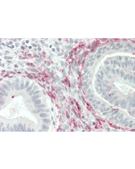 Immunohistochemical staining of GITRL using anti-GITRL (human), pAb (Prod. No. AG-25A-0023) in human uterus tissue (5µg/ml). This antibody has been tested in immunohistochemistry, analyzed by an anatomic pathologist and validated for use in IH