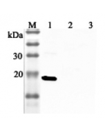 Western blot analysis using anti-IL-33 (human), pAb (Prod. No. AG-25A-0045) at 1:2'000 dilution. 1: Human IL-33 (His-tagged). 2: Unrelated protein (His-tagged) (negative control). 2: Human single chain IL-23 (FLAG®-tagged).