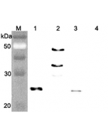 Western blot analysis of human FGF21 using anti-FGF-21 (human), pAb (Prod. No. AG-25A-0074) at 1:4,000 dilution.. 1. Recombinant human FGF21 (FLAG-tagged). 2. Recombinant human FGF21 (Fc protein). 3. Recombinant human FGF21 (His-tagged).