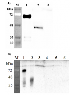 Western blot analysis of human DLK1 using anti-DLK1 (human), pAb (Prod. No. AG-25A-0091) at 1: 2,000 dilution. A. 1. Human DLK1 (Fc protein). 2. Transfected human DLK1 full length cell lysate (HEK 293). 3. Mock Transfected HEK293 c