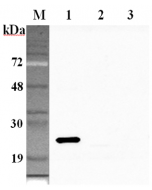 Western blot analysis using anti-GPX1 (human), pAb (Prod. No. AG-25A-0104) at 1:2'000 dilution. 1: Human GPX1 (His-tagged). 2: Human GPX2 (His-tagged). 3: Human GPX3 (His-tagged).
