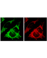 Immunocytochemical staining and detection of endogenous Fis1 (red) (right) and endogenous mitochondrial Hsp70 (green) (left) in methanol fixed HeLa cells using anti-Fis1, pAb (Prod. No. AG-20B-0007V).Picture courtesy of P. Parone, University of G