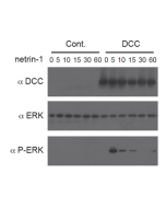 Netrin-1 (human):Fc (human) (rec.) (Prod. No. AG-40B-0075) triggers a DCC-dependent phosphorylation of ERK1/2. Method: HEK 293 cells (Control) or HEK 293 expressing the netrin-1 receptor DCC were incubated with netrin-1 (human):Fc (