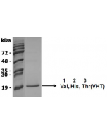NH2-terminal sequence analysis.