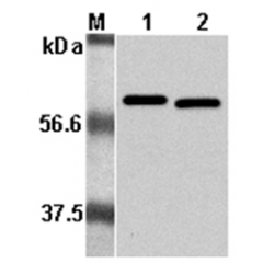 Western Blot analysis using anti-Listeria monocytogenes, mAb (P6017) (Prod. No. AG-20A-0023) at 1:5000 dilution.1: Recombinant L. monocytogenes p60. 2: Culture media of L. monocytogenes.