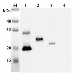 Western blot analysis using anti-IL-33 (human), mAb (IL33068A) (Prod. No. AG-20A-0042) at 1:2'000 dilution.1: Human IL-33 (His-tagged).2: Human IL-33 (FLAG®-tagged).3: Mouse IL-33 (FLAG®-tagged).4: Other prote