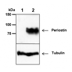 Mouse Periostin is detected by immunoblotting using anti-Periostin, mAb (Stiny-1) (Prod. No AG-20B-0033). Whole tissue extracts from mouse liver (lane 1) or mammary tumor (lane 2) were separated by SDS-PAGE under reducing conditions, transferred to