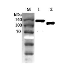 Western blot analysis using anti-ACE2 (human), pAb (Prod. No. AG-25A-0042) at 1:2'000 dilution. 1: Human ACE2 Fc-protein. 2: Human ACE2 (ED) (FLAG®-tagged).