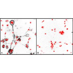 Immunocytochemical staining of  collagen degradation by human MDA-MB-231 breast cancer cells embedded in a 3D typeI collagen matrix using anti-Collagen Type 1 (¾ fragment), pAb (Prod. No. AG-25T-0116). Cells have been treated with non-targeting siRNA(A) o