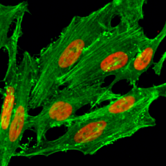 Immunocytochemical staining of HeLa cells treated with sodium butyrate, using anti-Acetyl-Histone H2A.Z (Lys7) Rabbit Monoclonal Antibody (clone RM222) (red). Actin filaments have been labeled with fluorescein phalloidin (green).