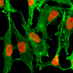 Immunocytochemistry of HeLa cells treated with sodium butyrate, using Acetyl-Histone H2B (Lys23) rabbit monoclonal antibody (RM260) (red). Actin filaments have been labeled with fluorescein phalloidin (green).