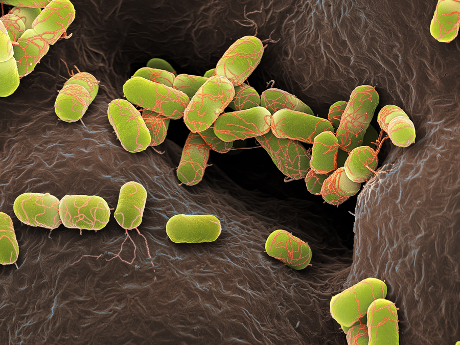 E. coli are gram-negative rod-shaped bacteria.